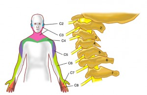 cervical-radiculopathy